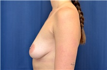 Breast Lift Before Photo by Michael Frederick, MD; Fort Lauderdale, FL - Case 40005