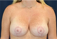 Breast Lift After Photo by Michael Frederick, MD; West palm beach, FL - Case 40008