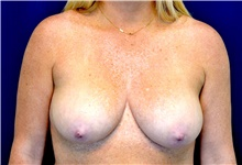 Breast Lift Before Photo by Michael Frederick, MD; West palm beach, FL - Case 40008