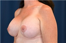 Breast Lift After Photo by Michael Frederick, MD; Fort Lauderdale, FL - Case 40009