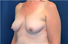 Breast Lift Before Photo by Michael Frederick, MD; Fort Lauderdale, FL - Case 40009