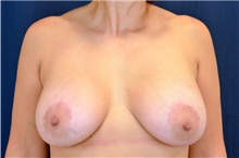 Breast Lift After Photo by Michael Frederick, MD; Fort Lauderdale, FL - Case 40010