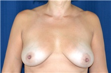 Breast Lift Before Photo by Michael Frederick, MD; Fort Lauderdale, FL - Case 40010