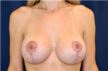 Breast Lift After Photo by Michael Frederick, MD; Fort Lauderdale, FL - Case 40013
