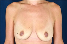 Breast Lift Before Photo by Michael Frederick, MD; Fort Lauderdale, FL - Case 40013