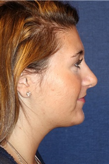 Rhinoplasty After Photo by Michael Frederick, MD; Fort Lauderdale, FL - Case 40014