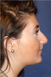 Rhinoplasty Before Photo by Michael Frederick, MD; Fort Lauderdale, FL - Case 40014