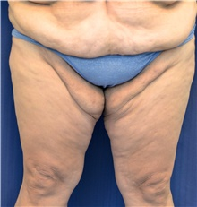 Thigh Lift Before Photo by Michael Frederick, MD; West palm beach, FL - Case 40016