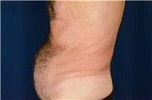 Tummy Tuck Before Photo by Michael Frederick, MD; Fort Lauderdale, FL - Case 40033