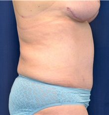 Tummy Tuck After Photo by Michael Frederick, MD; Fort Lauderdale, FL - Case 40040