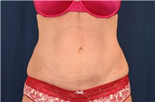 Tummy Tuck After Photo by Michael Frederick, MD; Fort Lauderdale, FL - Case 40044