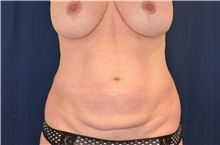 Tummy Tuck Before Photo by Michael Frederick, MD; Fort Lauderdale, FL - Case 40044