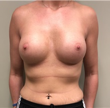 Breast Augmentation After Photo by Babis Rammos, MD, FACS; Peoria, IL - Case 33964