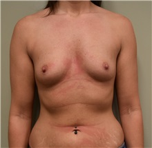 Breast Augmentation Before Photo by Babis Rammos, MD, FACS; Peoria, IL - Case 33964