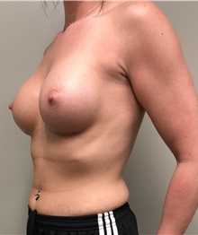 Breast Augmentation After Photo by Babis Rammos, MD, FACS; Peoria Heights, IL - Case 33964