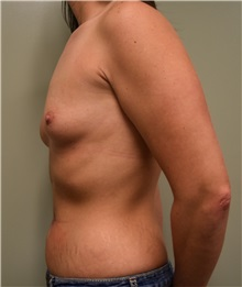 Breast Augmentation Before Photo by Babis Rammos, MD, FACS; Peoria Heights, IL - Case 33964