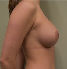 Breast Augmentation After Photo by Babis Rammos, MD, FACS; Peoria Heights, IL - Case 33965