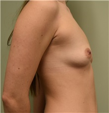 Breast Augmentation Before Photo by Babis Rammos, MD, FACS; Peoria Heights, IL - Case 33965