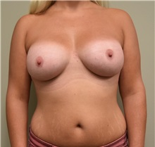 Breast Augmentation After Photo by Babis Rammos, MD, FACS; Peoria Heights, IL - Case 33966