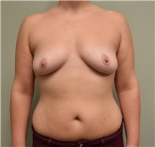 Breast Augmentation Before Photo by Babis Rammos, MD, FACS; Peoria Heights, IL - Case 33966
