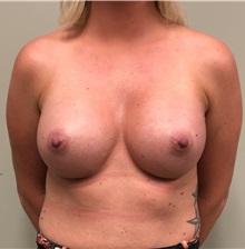 Breast Augmentation After Photo by Babis Rammos, MD, FACS; Peoria Heights, IL - Case 33967