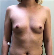 Breast Augmentation Before Photo by Babis Rammos, MD, FACS; Peoria Heights, IL - Case 33967
