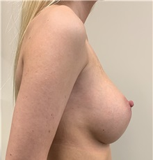 Breast Augmentation After Photo by Babis Rammos, MD, FACS; Peoria Heights, IL - Case 34966