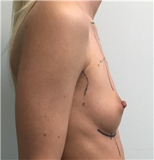 Breast Augmentation Before Photo by Babis Rammos, MD, FACS; Peoria Heights, IL - Case 34966