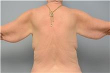 Arm Lift Before Photo by Carlos Rivera-Serrano, MD; Carbondale, IL - Case 43628