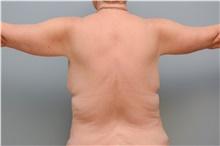 Body Contouring After Photo by Carlos Rivera-Serrano, MD; Carbondale, IL - Case 43629