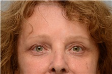 Botulinum Toxin After Photo by Carlos Rivera-Serrano, MD; Carbondale, IL - Case 43630