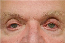 Botulinum Toxin After Photo by Carlos Rivera-Serrano, MD; Carbondale, IL - Case 43631