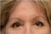 Botulinum Toxin After Photo by Carlos Rivera-Serrano, MD; Carbondale, IL - Case 43633