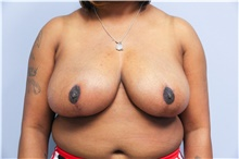 Breast Reduction After Photo by Carlos Rivera-Serrano, MD; Carbondale, IL - Case 43651