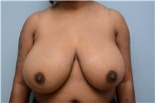 Breast Reduction Before Photo by Carlos Rivera-Serrano, MD; Carbondale, IL - Case 43651