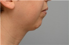 Chin Augmentation Before Photo by Carlos Rivera-Serrano, MD; Carbondale, IL - Case 43672