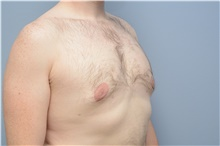 Male Breast Reduction After Photo by Carlos Rivera-Serrano, MD; Carbondale, IL - Case 43709