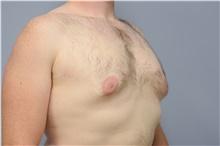 Male Breast Reduction Before Photo by Carlos Rivera-Serrano, MD; Carbondale, IL - Case 43709