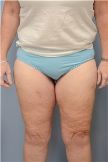 Thigh Lift After Photo by Carlos Rivera-Serrano, MD; Carbondale, IL - Case 43747