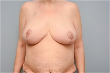 Breast Reconstruction After Photo by Carlos Rivera-Serrano, MD; Carbondale, IL - Case 44592
