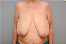 Breast Reconstruction Before Photo by Carlos Rivera-Serrano, MD; Carbondale, IL - Case 44592