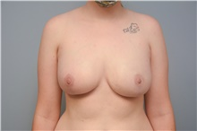 Breast Reconstruction After Photo by Carlos Rivera-Serrano, MD; Carbondale, IL - Case 44608