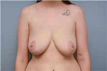 Breast Reconstruction Before Photo by Carlos Rivera-Serrano, MD; Carbondale, IL - Case 44608