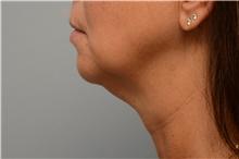 Chin Augmentation Before Photo by Carlos Rivera-Serrano, MD; Carbondale, IL - Case 44615