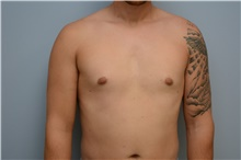 Male Breast Reduction After Photo by Carlos Rivera-Serrano, MD; Carbondale, IL - Case 44618