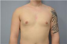 Male Breast Reduction Before Photo by Carlos Rivera-Serrano, MD; Carbondale, IL - Case 44618