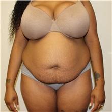Tummy Tuck Before Photo by Kyle Shaddix, MD; Pensacola, FL - Case 31986