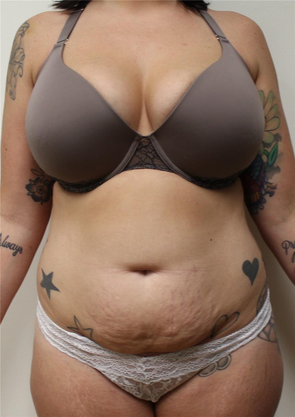 Breast implants pensacola fl