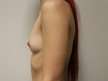 Breast Augmentation Before Photo by Kyle Shaddix, MD; Pensacola, FL - Case 35967