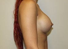 Breast Augmentation After Photo by Kyle Shaddix, MD; Pensacola, FL - Case 35967